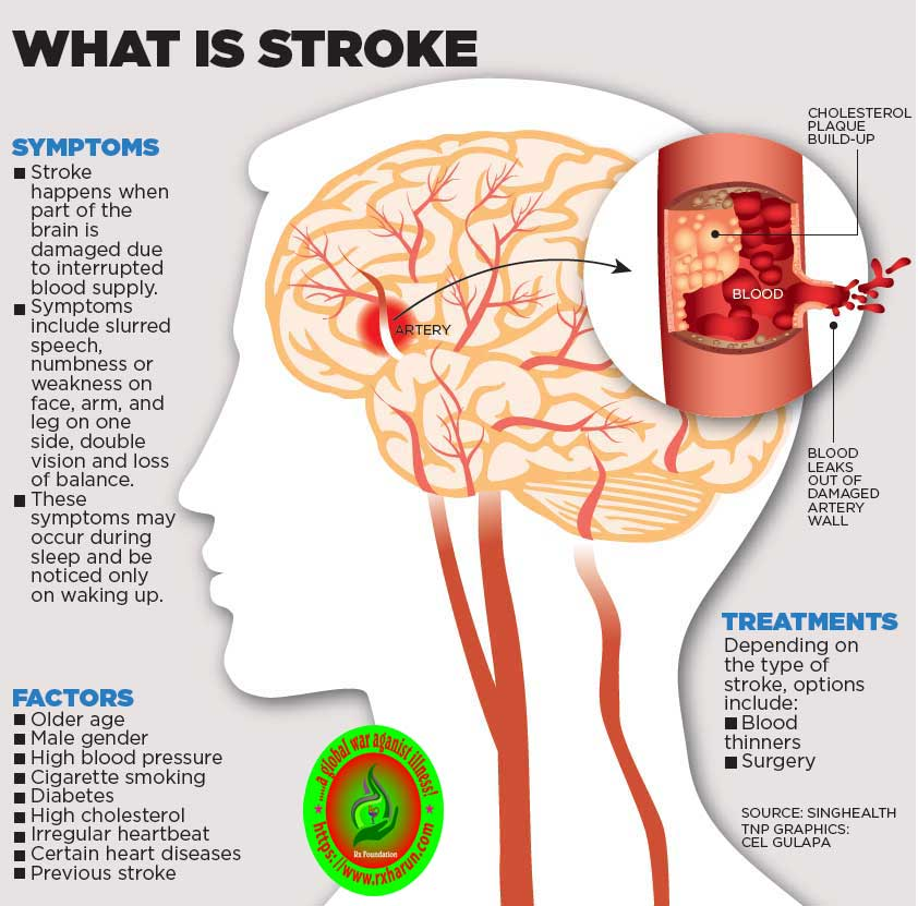 What are the five warning signs of a stroke