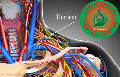 rxharun.com/thoracic outlet syndrome