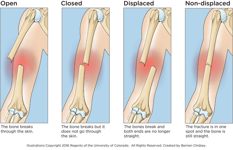 Proximal Forearm Fractures