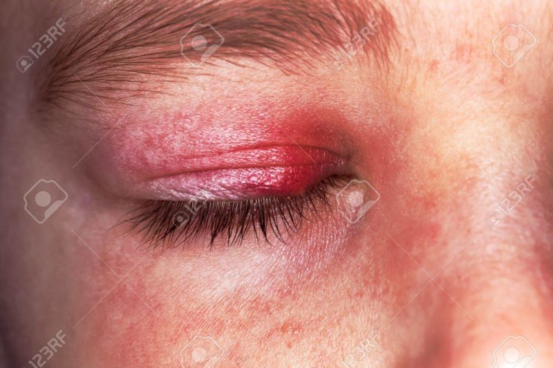 Sjogren's Syndrome Causes