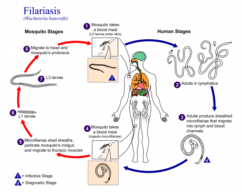 What Are The Signs and Symptoms of Filariasis