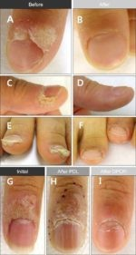 What Are The Main Types of Warts, Treatment