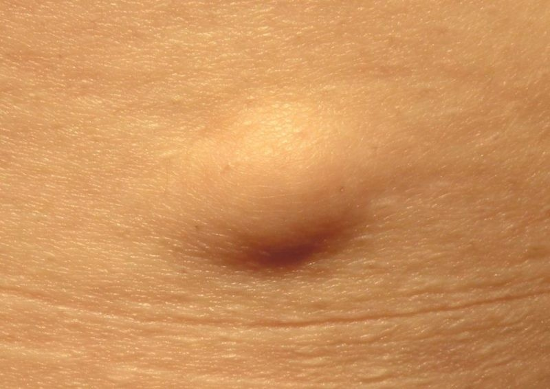 What are the signs and symptoms of tumor lysis syndrome?