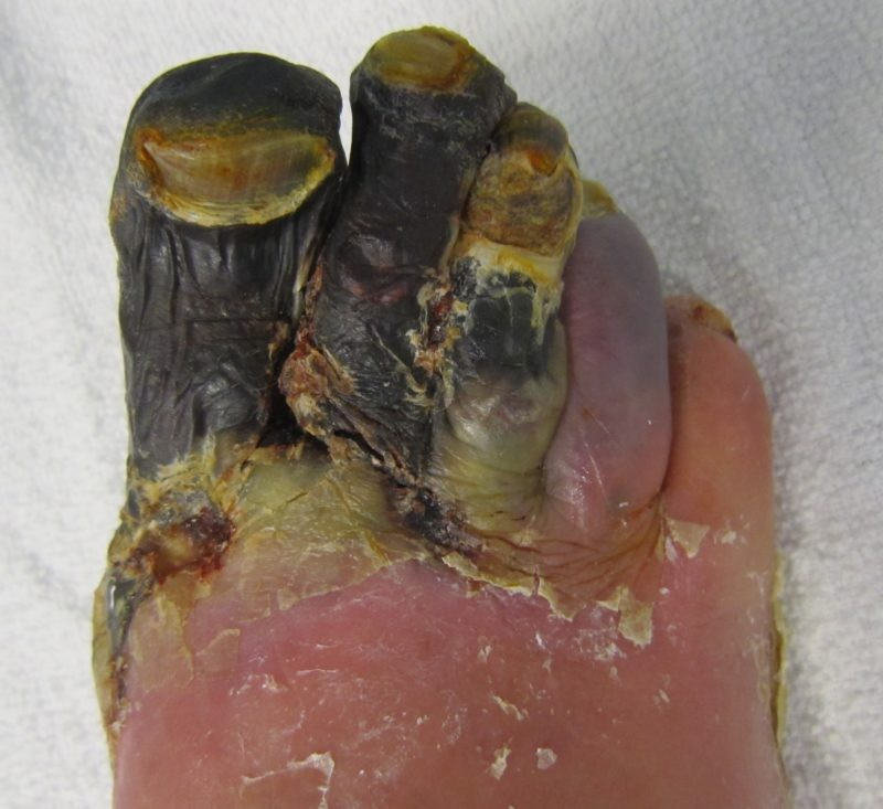 What Is The Best Treatment of Dry Gangrene