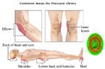 Proximal Biceps Tendon Rupture, Symptoms, Treatment